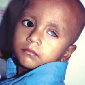 Two-year-old Yasin injured his left eye in an accident, a cornea transplant is his sole hope for  restoring his vision.